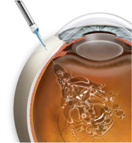 INJECTIONS INTRAVITRÉENNES (IVT)