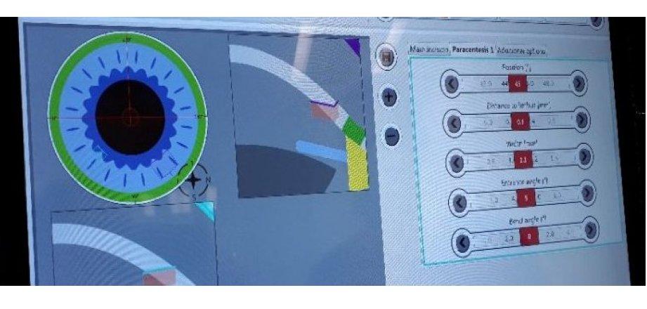 27 Juin 2018:  Début des essais de chirurgie de la cataracte au laser Femtoseconde