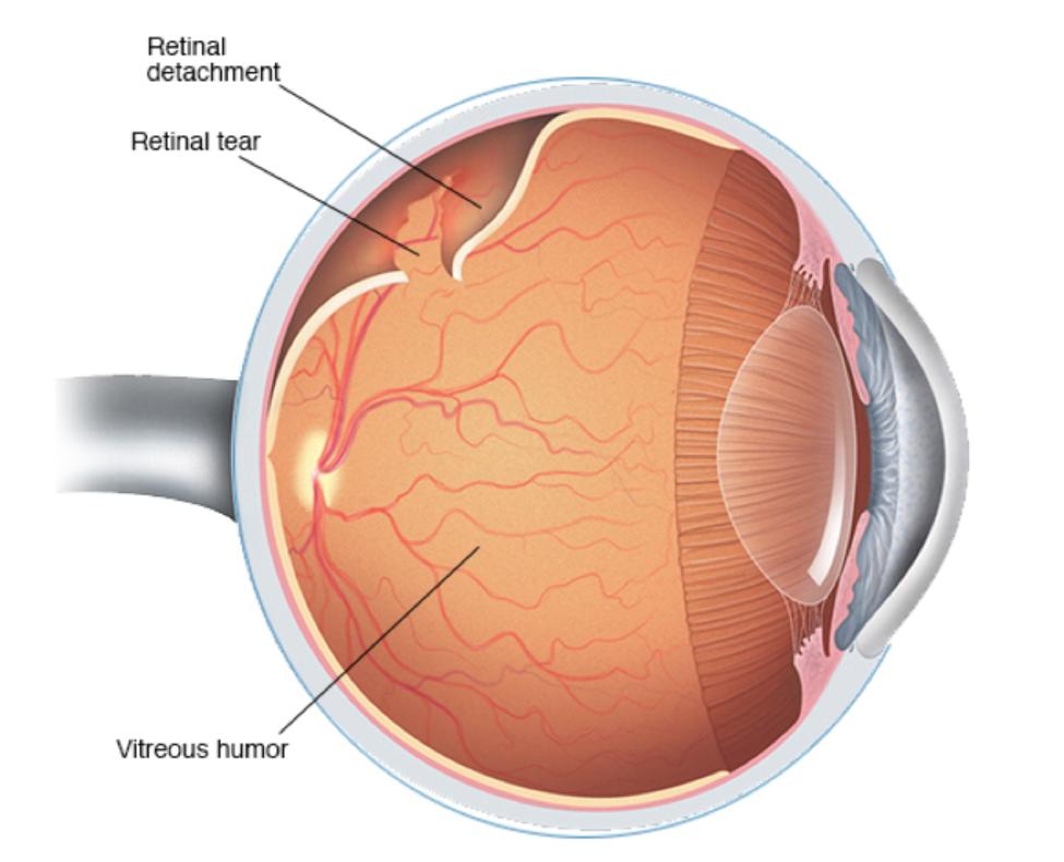 Pathologies traitées | Cabinet d'ophtalmologie de GRANVILLE
