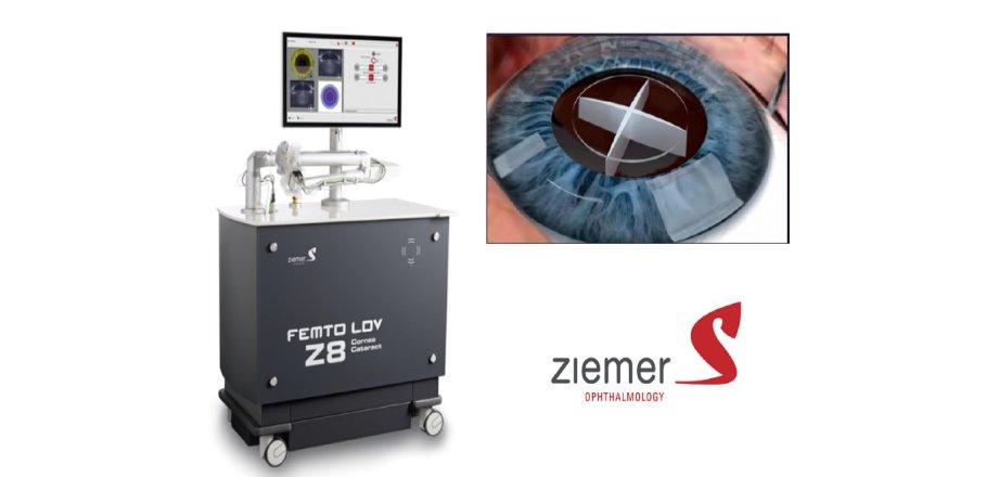 """25 Juin 2019 : Mise en place de chirurgie de la cataracte assistée au laser """"femtoseconde"""""""